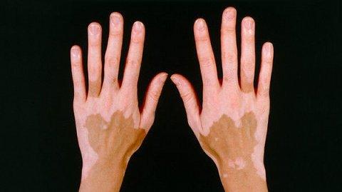 «Пегая кожа», или витилиго