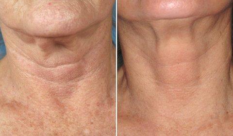 Применение фраксель в коррекционной косметологии