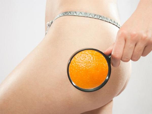 Убираем «апельсиновую корку» раз и навсегда