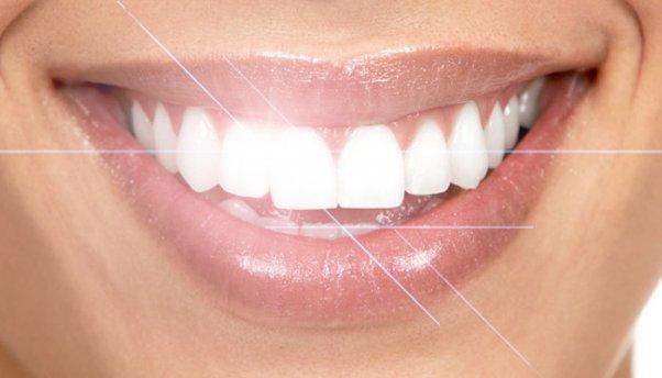 Отбеливание зубов: только индивидуальное решение